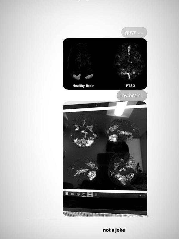 Hasil pemindaian otak Ariana Grande (Prevention/Instagram/@arianagrande)#source%3Dgooglier%2Ecom#https%3A%2F%2Fgooglier%2Ecom%2Fpage%2F2019_04_14%2F373345