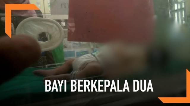 Seorang ibu di Brebes, Jawa Tengah melahirkan bayi berkepala dua. Pihak keluarga mengaku pasrah atas kelahiran bayi tersebut karena harus dirujuk ke rumah sakit di Semarang.