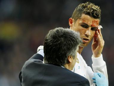Striker Real Madrid, Cristiano Ronaldo, mengalami pendarahan di bagian pelipis saat melawan Deportivo La Coruna pada laga La Liga di Stadion Santiago Bernabeu, Minggu (21/1/2018). Real Madrid menang 7-1 atas Deportivo La Coruna. (AP/Francisco Seco)