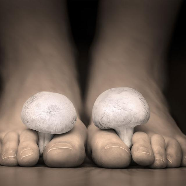 Bawang Putih 11 Ramuan Alami Yang Diklaim Ampuh Obati Jamur Pada Tubuh Global Liputan6 Com