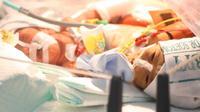 Ayah bayi kembar siam dempet perut, Yohanes Dwi Putra, mengaku telah merelakan kepergian anaknya. (Liputan6.com/Dian Kurniawan)