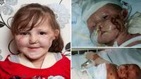 Seorang gadis kecil yang manis terpaksa harus kehilangan kedua kaki dan lengannya karena virus mematikan, meningitis.