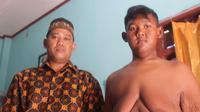 Masalah baru muncul setelah Arya si bocah obesitas asal Karawang berhasil menurunkan secara drastis berat badannya. ( Liputan6.com/ Abramena)