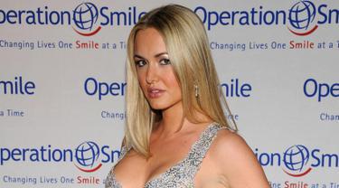 Vanessa Haydon berpose saat tiba menghadiri Gala Smile Operasi Tahunan ke-5 di Studio Skylight di New York City pada 14 Mei 2018. Istri putra sulung Donald Trump ini resmi menggugat cerai suaimnya. (AFP Photo/Bryan Bedder)