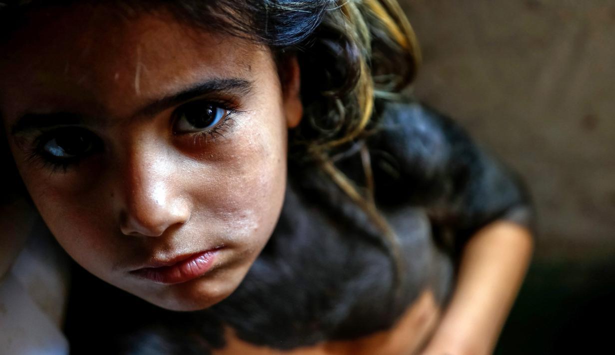 Houra bocah empat tahun yang mengidap penyakit kulit langka dengan bercak hitam dan rambut menutupi bagian atas tubuhnya berada di rumahnya di desa Wahed Haziran, Provinsi Diwaniya, Irak, (17/3). (AFP Photo/Haidar Hamdani)
