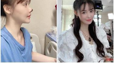 Before and After  Gao Liu/dok. Instagram @topskynews