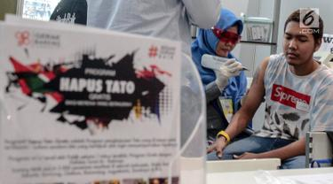 Petugas Komunitas Gerak Bareng melakukan proses penghapusan tato dalam acara Hijrah Fest 2018 di Jakarta, Sabtu (10/11). Program ini dilakukan secara gratis. (Liputan6.com/Faizal Fanani)