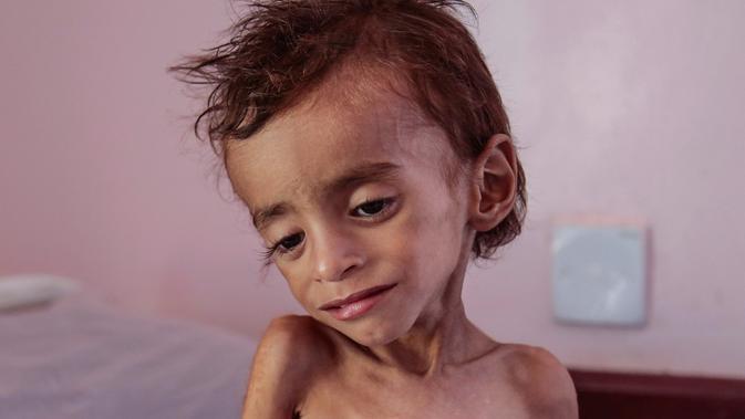 Seorang anak laki-laki penderita gizi buruk berada di tempat tidur rumah sakit di Aslam Health Centre, Hajjah, Yaman (1/11). Pertempuran di kota pelabuhan Hodeida mengancam terhentinya bantuan kemanusiaan. (AP Photo / Hani Mohammed)