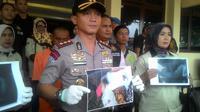 Kapolres Garut AKBP Budi Satria Wiguna menunjukan sejumlah hasil rontgen patahan tulang tangan bayi korban kekerasan di Garut (Liputan6.com/Jayadi Supriadin)