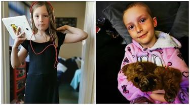 Stres Lockdown Covid, Kisah Gadis Cabuti Rambutnya Sampai Botak Ini Bikin Pilu