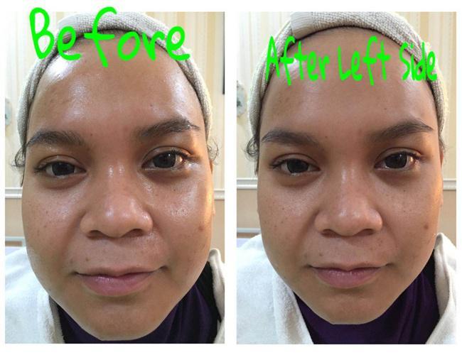 HIFU, Treatment Kecantikan yang Menjawab Kebutuhan Wanita - Fashion
