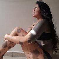 Gara-gara tanda lahir yang hampir ada di sekujur tubuh wanita ini sempat ingin mencoba bunuh diri, tapi sesuatu terjadi… (Foto: SWNS photo)