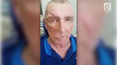 Seorang pria paruh baya mengalami kerusakan wajah, sehingga ia harus memakai wajah palsu yang dapat dibongkar pasang