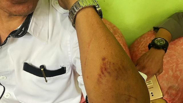 Luka di tangan kepala sekolah di Riau karena dipukul siswanya.