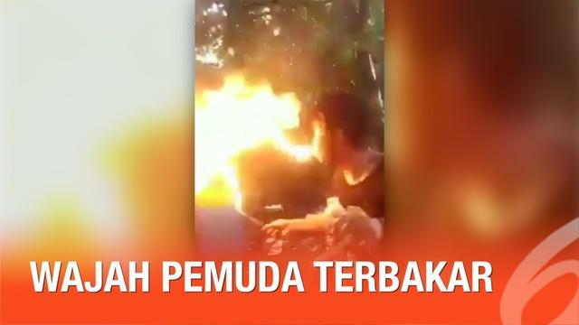 Secara tiba-tiba api menjalar ke wajah si pemuda ketika ia mencoba atraksi sembur api.