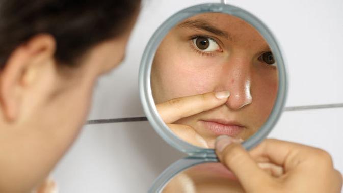 9 Masalah Kesehatan Yang Ditandai Dengan Jerawat Di Badan Beauty Fimela Com