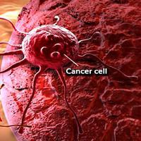 Obat kanker belum tentu ampuh hilangkan sel kanker. (Ilustrasi: OnHealth)