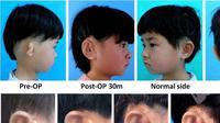 Sel tulang rawan yang diambil dari telinga sendiri, lalu ditanam pada cetakan buatan, sebelum akhirnya dicangkokkan ke tempatnya. (Cao et al/EBioMedicine)
