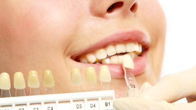 Tips Memutihkan Gigi Secara Alami Beauty Fimela Com