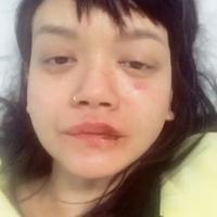 Dengan wajah yang masih babak belur akibat dipukul, Dylan Sada curhat soal kekerasan yang dialaminya. (Instagram)