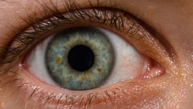 Ilustrasi mata manusia. Tampak cincin limbal mengelilingi bagian iris mata. (Sumber Wikimedia Commons)