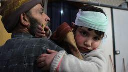 Ekspresi seorang anak yang terluka akibat serangan udara pasukan Assad di wilayah Ghouta timur, Suriah (7/2). Karena banyak memakan korban PBB pun meminta kepada sejumlah pihak untuk melakukan gencatan senjata demi kemanusiaan. (AFP Photo/Hamza Al-Ajweh)
