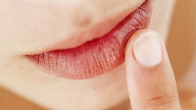 Hasil gambar untuk bibir kasar