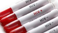 Meski sepele, kamu nggak boleh mengabaikan tanda seseorang terkena HIV ini ya. (Sumber Foto: POZ Magazine)