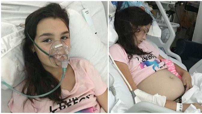 Perut Buncit Dikira Hamil Saat Diperiksa Gadis Ini Ternyata Citizen6 Liputan6 Com