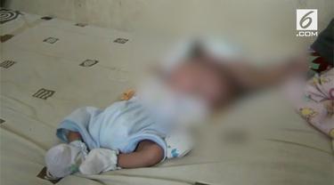 Gilang Andika, bayi yang terlahir dengan dua wajah dan otak terpisah di Batam, Kepulauan Riau, sangat membutuhkan bantuan.