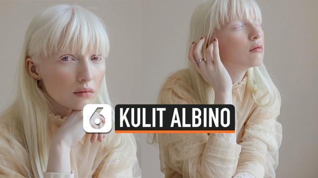 THUMBNAIL KULIT ALBINO