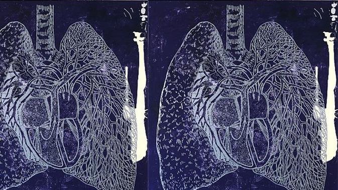 Gejala Penyakit Kanker Paru-paru (bagian 1) - Beauty ...