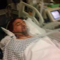 Seorang pria terseret sejauh 45 meter usai ditabrak lari. Dia lantas koma tak sadarkan diri. Saat siuman, dia harus menerima kenyataan pahit. | via: thesun.co.uk