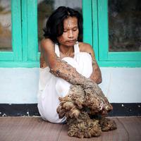 Penyakit langka, Dede manusia akar | Via: istimewa