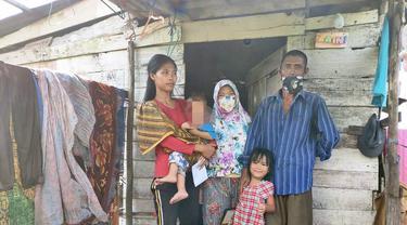 Derita Bocah di Palembang, Hidup di Gubuk Rapuh dan Alami Kelainan Alat Kelamin