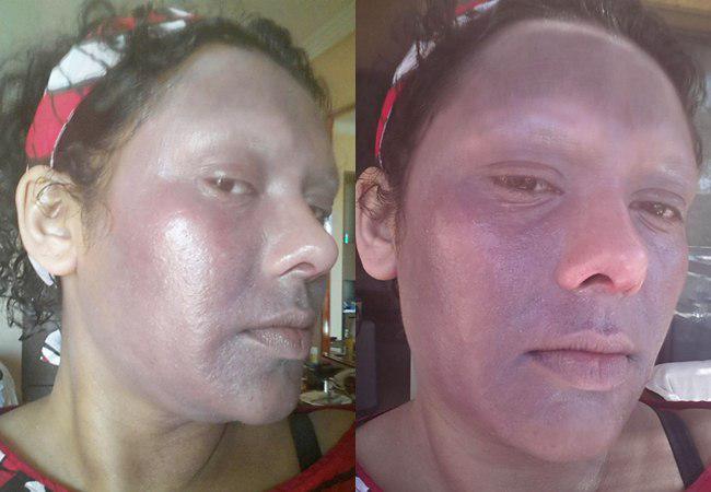 Wajah Shabana gosong karena kulitnya terbakar | foto: copyright dailymail.co.uk