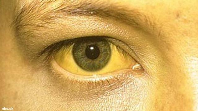 Sindrom Gilbert Diawali Mata Kuning Karena Bilirubin Tinggi Health Liputan6 Com