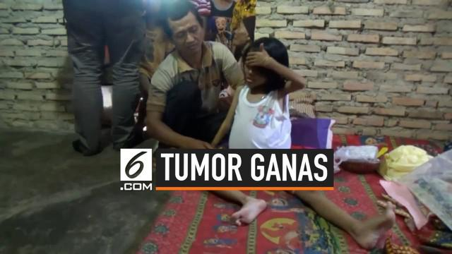 Seorang bocah 6 tahun di Bakauheni, Lampung menderita tumor ganas di perutnya. Orangtua tak bisa membawanya ke rumah sakit karena keterbatasan biaya dan tak punya BPJS.