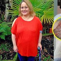 Hati-hati saat mencukur bulu kaki, jangan sampai kejadian yang dialami wanita ini juga menimpa kamu... (Foto: Thesun.co.uk)