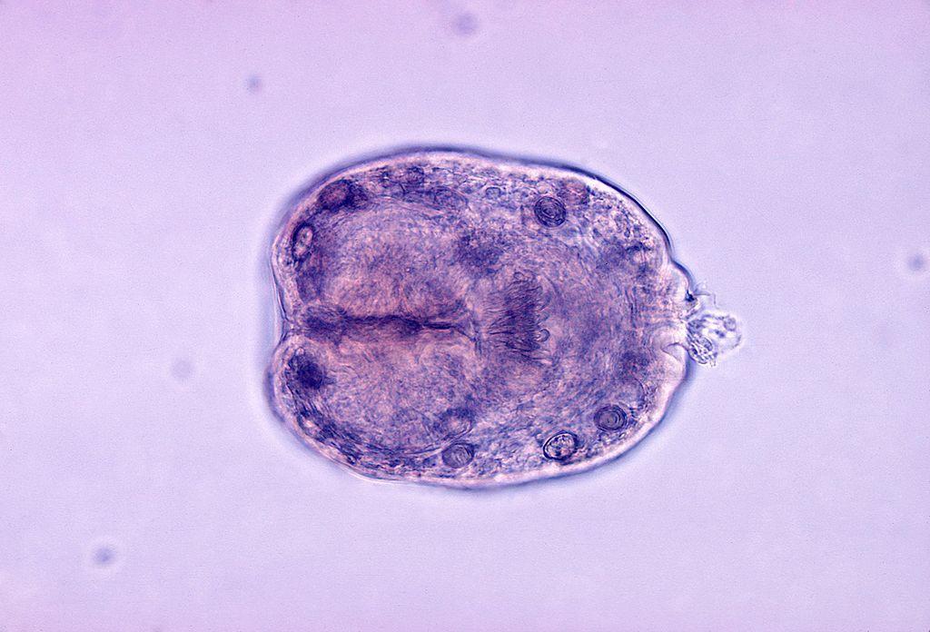 Echinococcus Granulosus (Wikipedia/Public Domain)