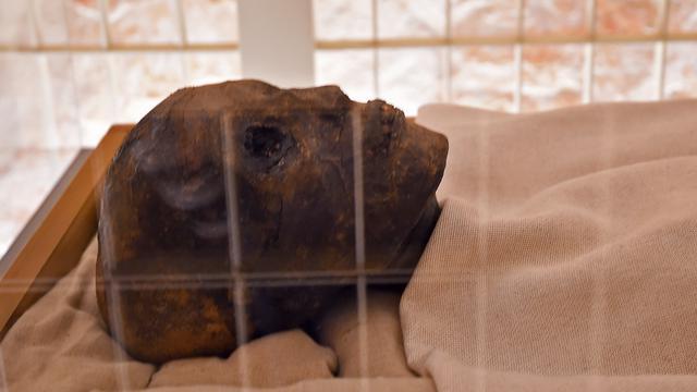 Melihat dari Dekat Mumi Firaun Tutankhamun