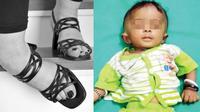 Tragis, bocah ini tewas akibat high heels ibunya