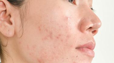 5 Cara Merawat Kulit Berminyak Dan Berjerawat Hingga Ke Akar Permasalahannya Beauty Fimela Com