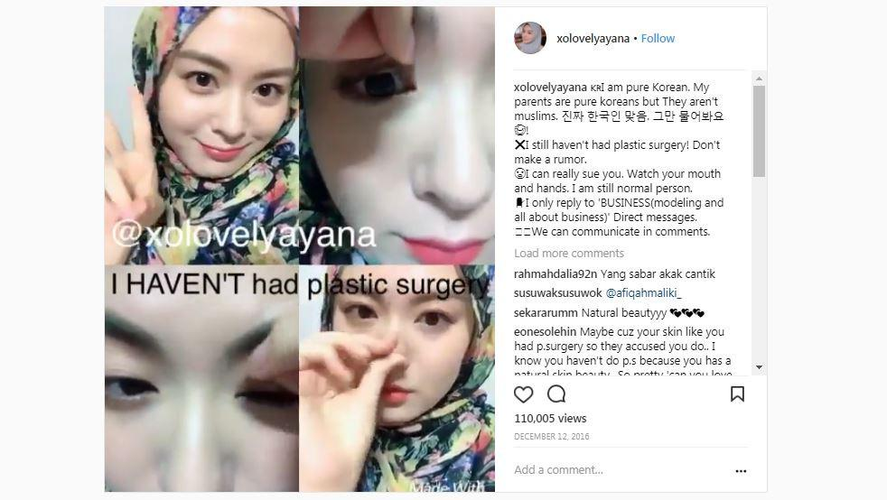Ayana Jihye Moon tegas bantah tuduhan operasi plastik [foto: instagram.com/xolovelyayana]