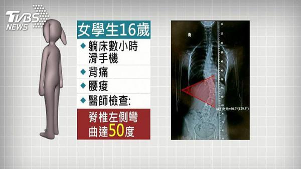 Gadis asal Taiwan yang tulang belakangnya cidera akibat sering bermain smartphone saat tidur. (Foto: Brillio)