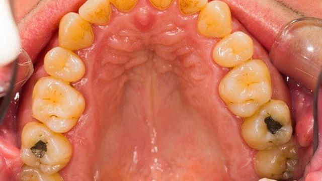 Gigi Berlubang Sebabkan Sinusitis 7d6d8a3d7a