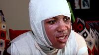 Seorang remaja 15 tahun di Amerika Serikat menjadi korban tren permainan di internet (Screenshot Youtube ABC13 Houston)