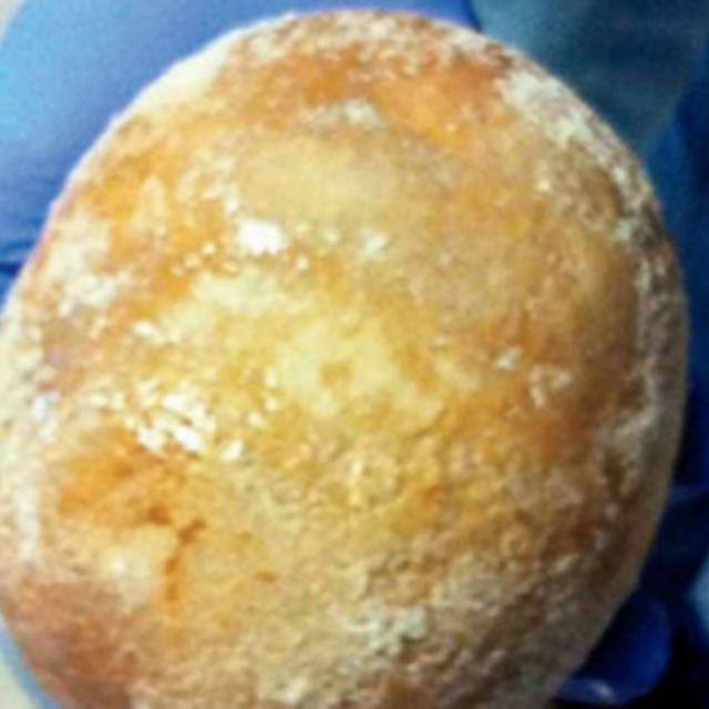 72 Gambar Batu Ginjal Terbesar Paling Hist