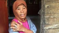 Selama dua tahun, TKI Cianjur itu kehilangan tidak hanya jari tapi juga gaji yang tak pernah dibayarkan. (Liputan6.com/Achmad Sudarno)