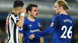 Wajah pemain Everton, Leighton Baines berlumuran darah usai bertabrakan dengan pemain Newcastle United pada lanjutan Premier League di Goodison Park, Liverpool,(23/4/2018). Everton menang 1-0. (AFP/Oli Scarff)